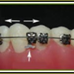 Braces that have fallen off or are loose