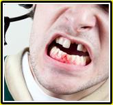 ko teeth