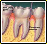 swollen-bleeding-gums
