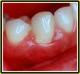 swollen-bleeding-gums